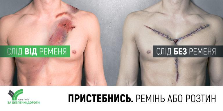 Украинским водителям предложили альтернативу: «Ремень или вскрытие»