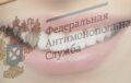 Предложение сделать панорамный снимок зубов и их чистку признали ненадлежащей рекламой
